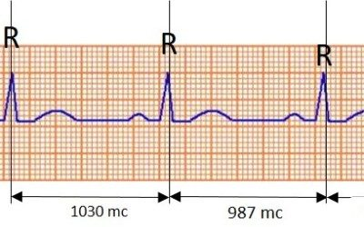 Co je to kardiogram a čím se liší od rytmogramu R-R