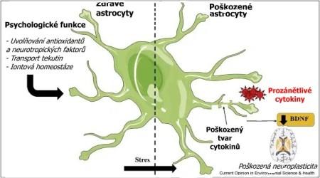 Stres na buněčné úrovni