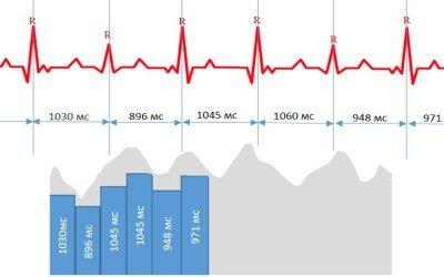Jak měřit variabilitu srdeční frekvence? Heart Vision (EKG) vs. Hodinky (PPG)